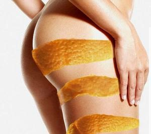 Cellulite - Pelle a buccia d'arancia