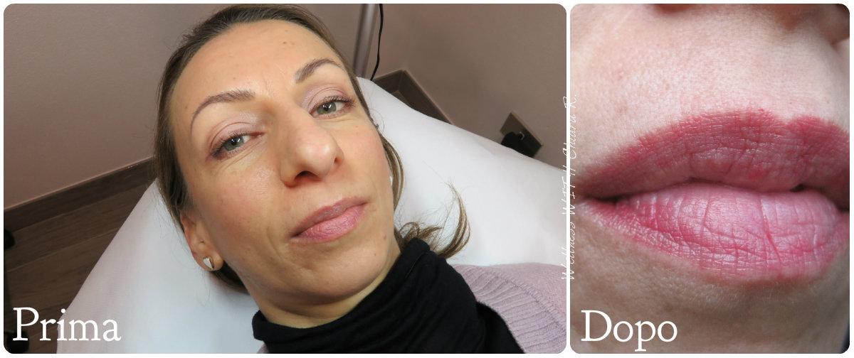 collage Prima&Dopo